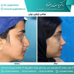 nose surgery (109)