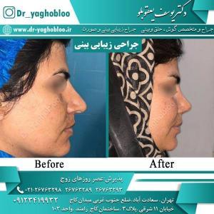 nose surgery (11) (1) (1)