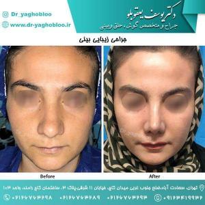 nose surgery (112)