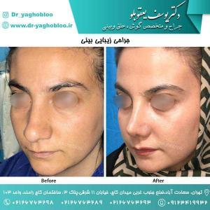 nose surgery (113)
