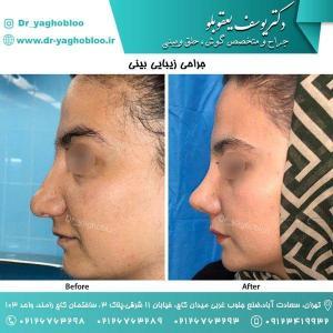 nose surgery (114) (1)