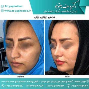 nose surgery (115) (1)