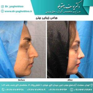 nose surgery (116)