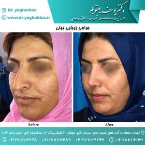 nose surgery (117)