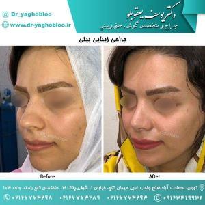 nose surgery (119)