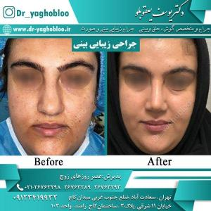 nose surgery (12)