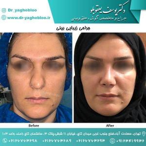 nose surgery (125) (1)