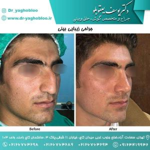 nose surgery (128)