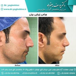 nose surgery (129)