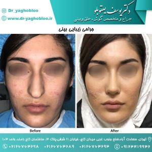 nose surgery (130)