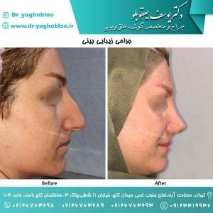 nose surgery (132)