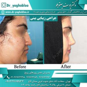 nose surgery (14)