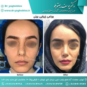 nose surgery (143) (1)