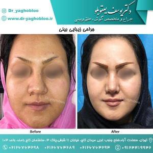 nose surgery (144)