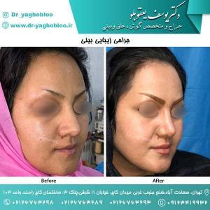 nose surgery (145) (1)