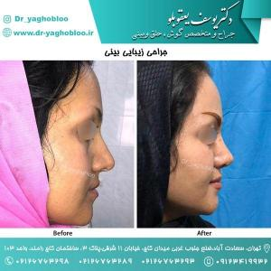 nose surgery (146)
