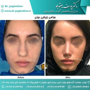nose surgery (147)