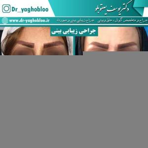 nose surgery (15) (1)