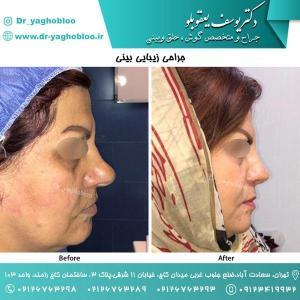 nose surgery (150)