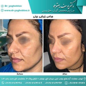nose surgery (153)