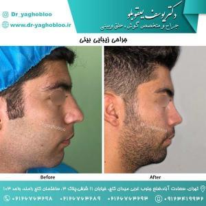 nose surgery (157)