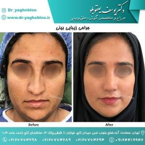 nose surgery (163)