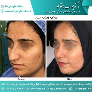 nose surgery (164)