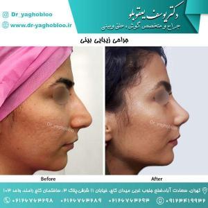 nose surgery (168)