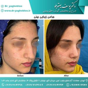 nose surgery (169)