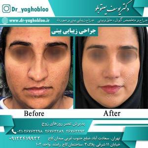 nose surgery (17)