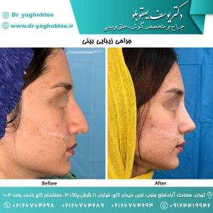 nose surgery (170)