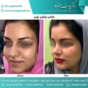 nose surgery (171)