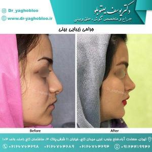 nose surgery (172)