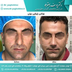nose surgery (175)