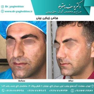 nose surgery (176)