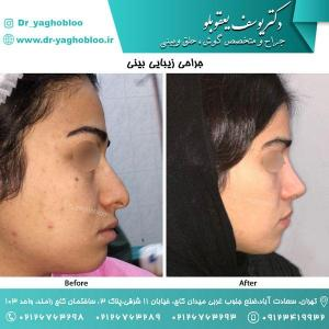 nose surgery (178)