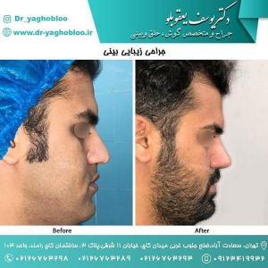 nose surgery (179)
