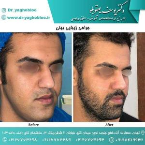 nose surgery (180)