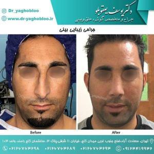 nose surgery (181)