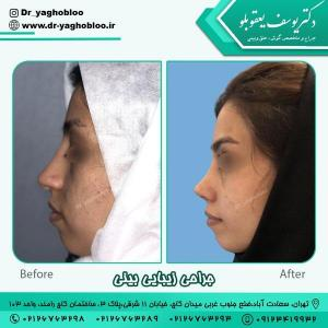 nose surgery (189)