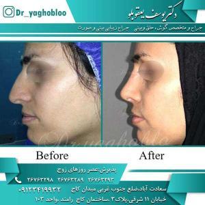 nose surgery (192)