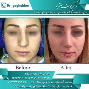 nose surgery (198)