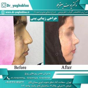 nose surgery (20) (1)