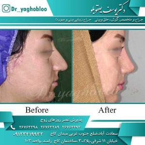 nose surgery (200)