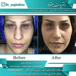 nose surgery (202)