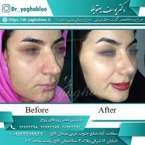 nose surgery (205)