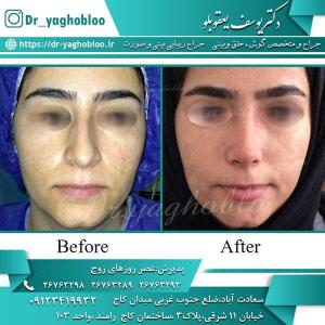 nose surgery (207)