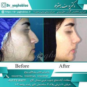 nose surgery (209)