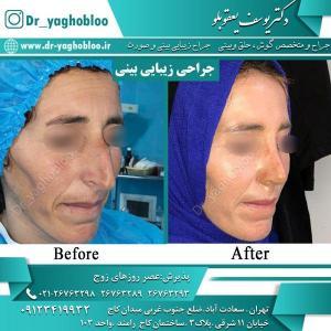 nose surgery (21)