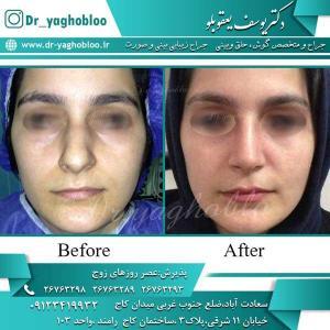 nose surgery (210)